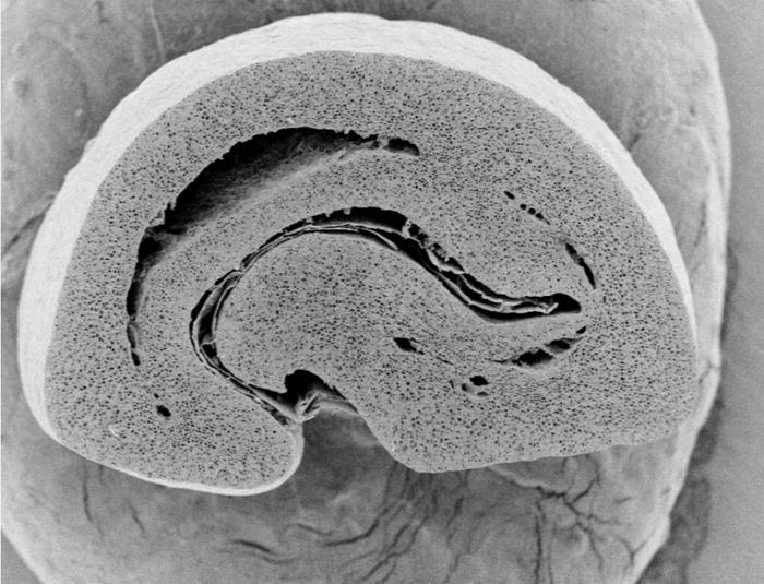 578e5fe32e4b60c17ffde1d1_coffee bean microscope cross section.png
